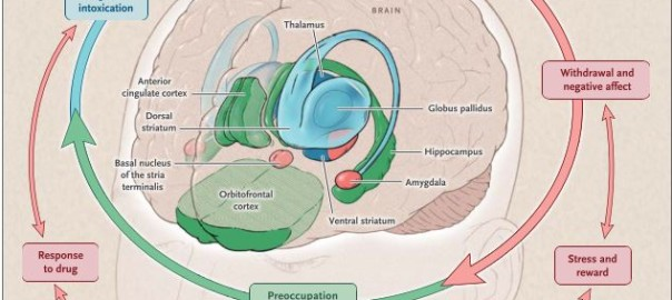 Neurobiologic advances from the brain disease model of addiction
