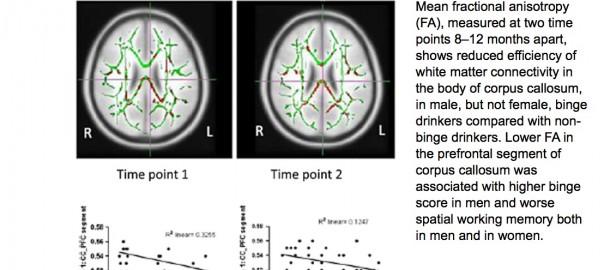 Atteintes de la substance blanche et de la mémoire de travail spatiale chez les jeunes binge drinkers comparativement aux buveurs sociaux.