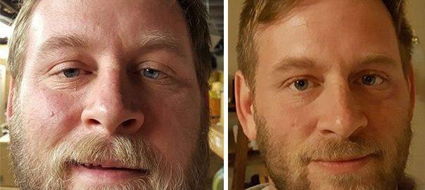 ALCOOL / Les effets de l'alcool sur le corps sont impressionnants : La preuve avec ces 20 photos avant/après !