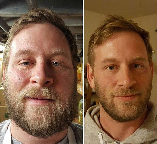Addiction Alcool - ALCOOL / Les effets de l'alcool sur le corps sont impressionnants : La preuve avec ces 20 photos avant/après !