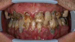 dents addiction