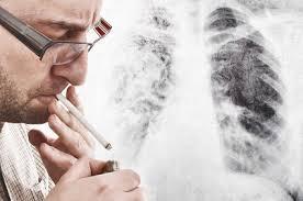 Addiction Tabac - TABAC / 21 maladies chroniques qui lui sont liées