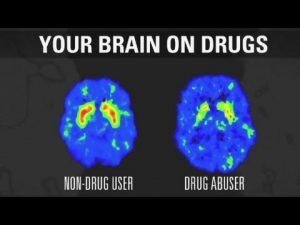 your brain ondrugs