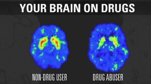 ADDICTIONS / Quand notre cerveaux se fait piéger