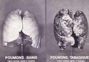 Addiction Tabac - TABAC / Les effets du tabagisme sur la respiration
