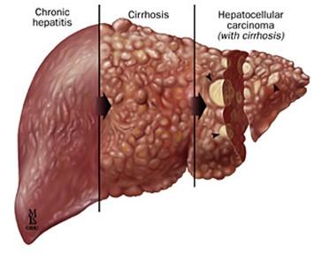 Addiction Alcool - ALCOOL / La cirrhose du foie est-elle une maladie microbienne ?