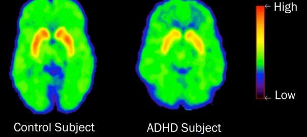 Contribution des études de neuro-imagerie à la compréhension du mode d'action pharmacologique du méthylphénidate : un article de synthèse paru dans la revue Trends in Pharmacological Sciences