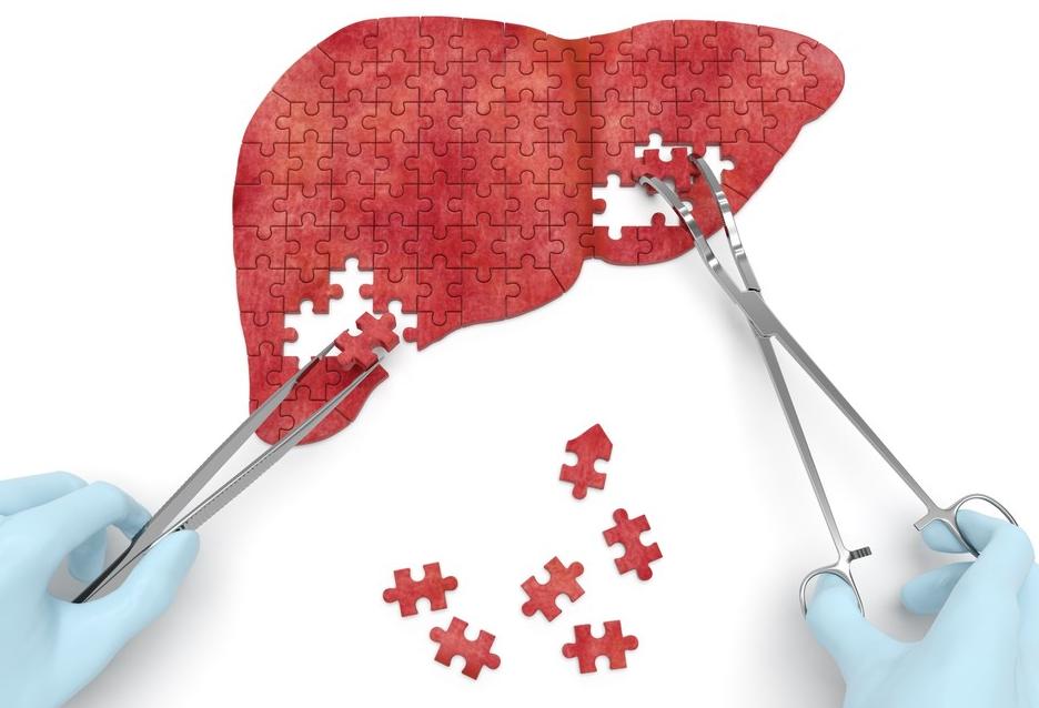 Addiction Alcool - Impact de la rechute sur le greffon et la survie des patients transplantés hépatiques pour une cirrhose d'origine alcoolique