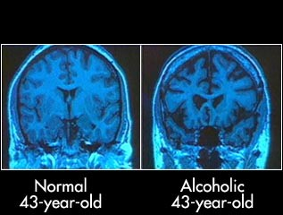 Addiction Alcool - Alcoolodépendance : quelles sont les zones cérébrales qui récupèrent après une période courte ou longue d'abstinence ? Une étude d'IRM dans ACER.