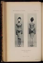 Le modèle addictologique de l'anorexie mentale : quid de l'altération du volume et de la forme des ganglions de la base ?